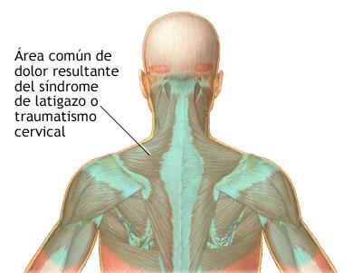 La trombosis de la vena yugular el tratamiento