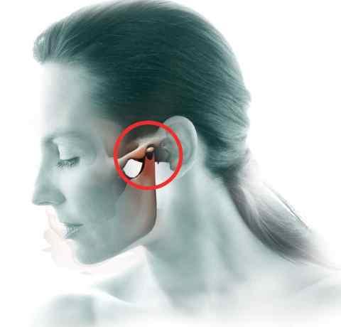causas del dolor de mandibula